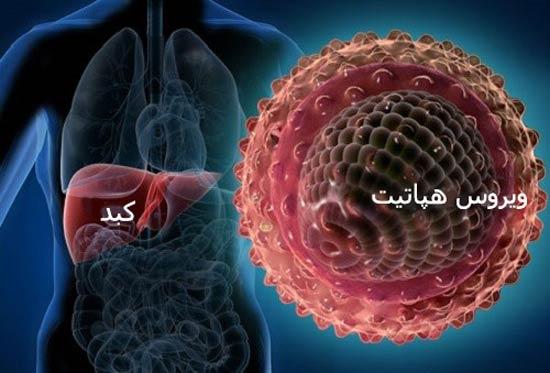 بیماری هپاتیت