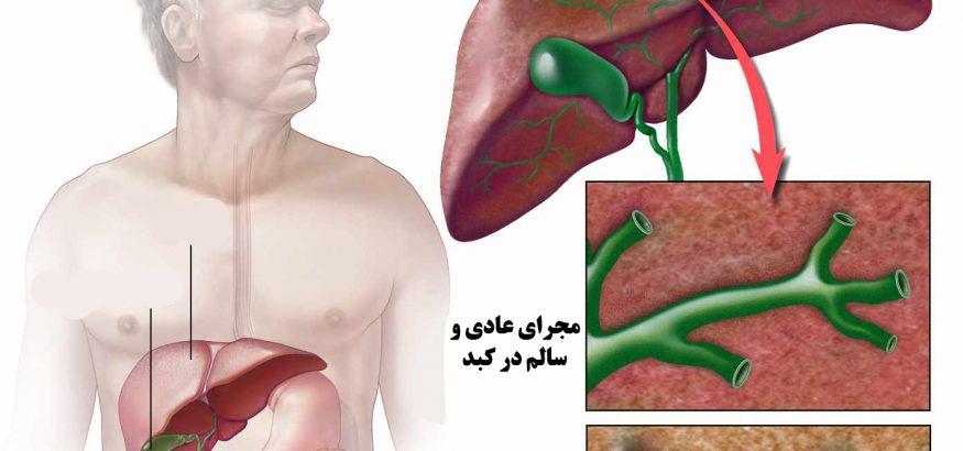 بیماری کلانژیت